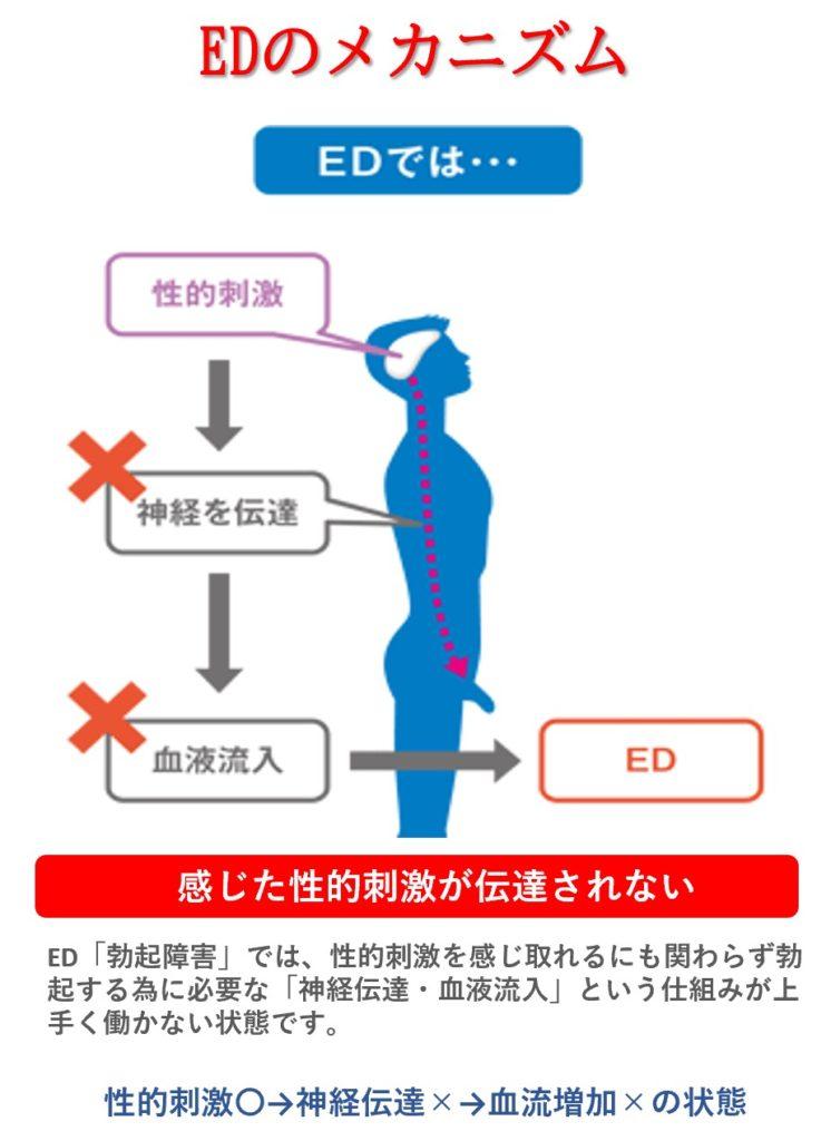 EDの仕組み:性的刺激→神経伝達不良→血流増加不良→ED